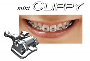 m-clippy